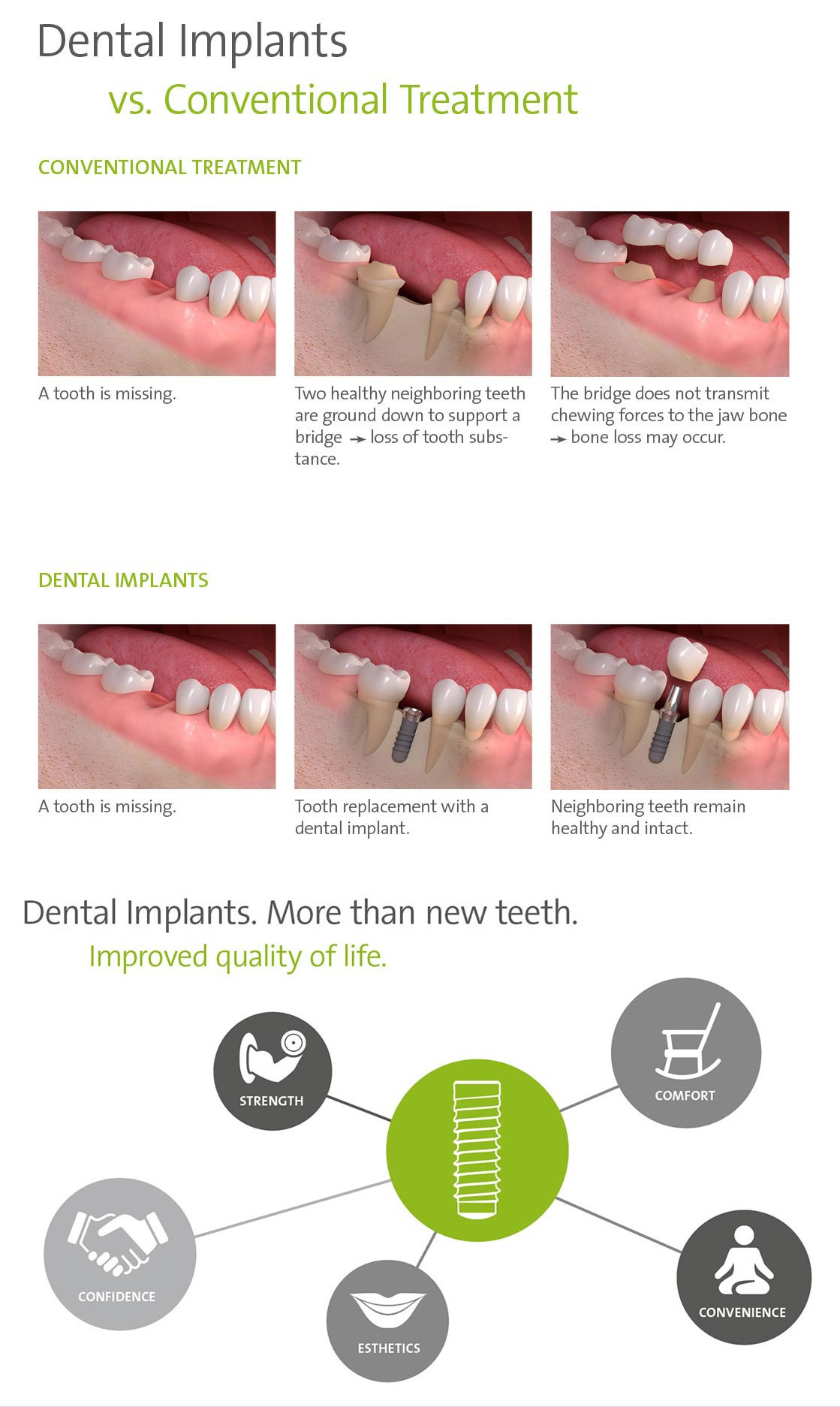 Bay-2-Dental-implants-V39s-conventional-implants-Bay-3-Dental-Implants-more-than-new-teeth-
